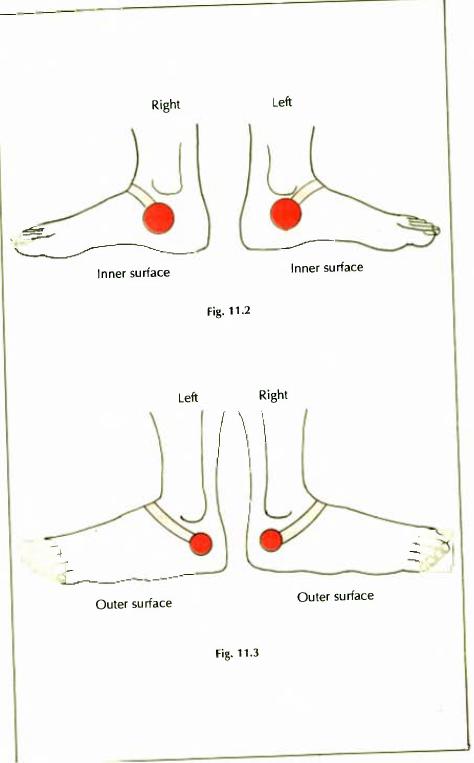 11.2 & 3 menstrual disorders leucorrhoea img