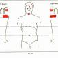 12.2 thyroid gland img
