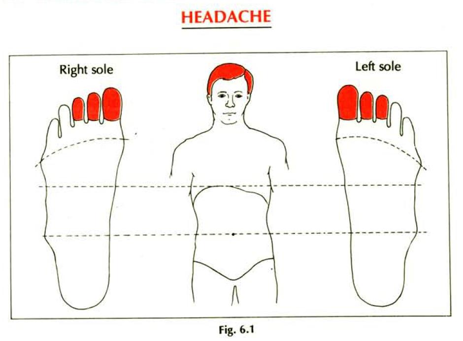 6.1 headache