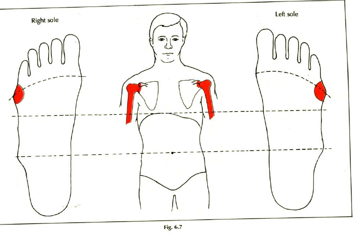 6.7 frozen shoulder stiffness pain img