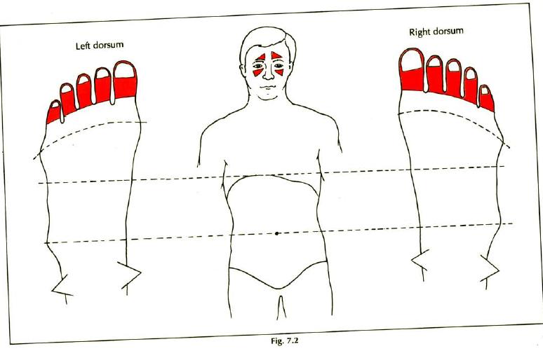 7.2 sinusitis img