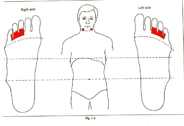 7.3 tonsillitis img