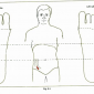 8.5 appendix appendicitis img