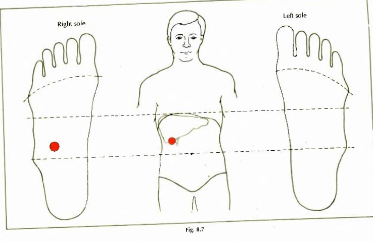 8.7 gall bladder gall stone img