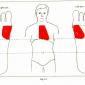 9.1 heart palpitations angina pectoris img