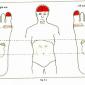 9.2 high bp hypertension low bp img