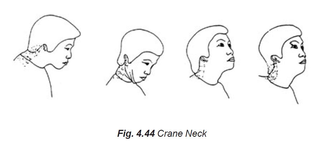 4.44 crane neck