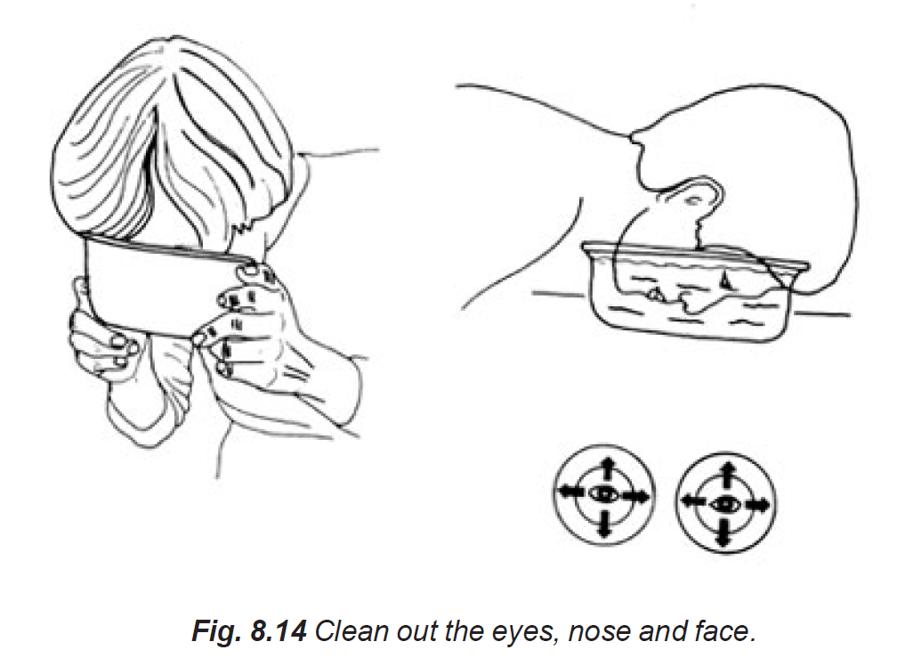 8.14 clean out the eyes nose and face