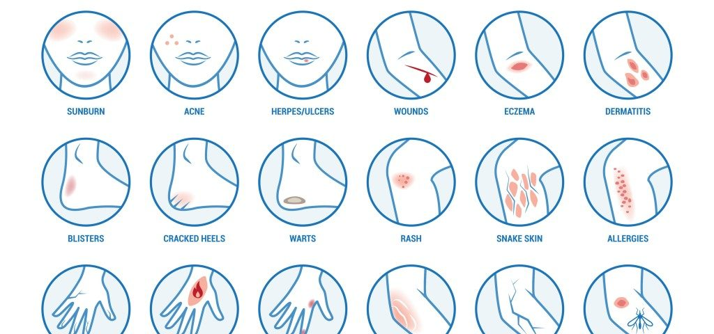 most-common-skin-diseases-1024x768