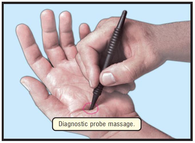 DIAGNOSTIC PROBE MASSAGE h 17