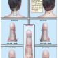 Spine & cervical vertebrae 44