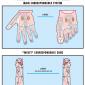 limb diseases 49
