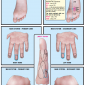 right foot 61