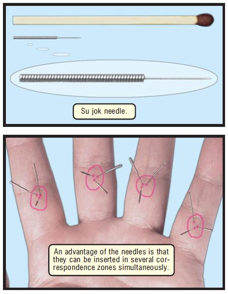 stimulation needle e 17