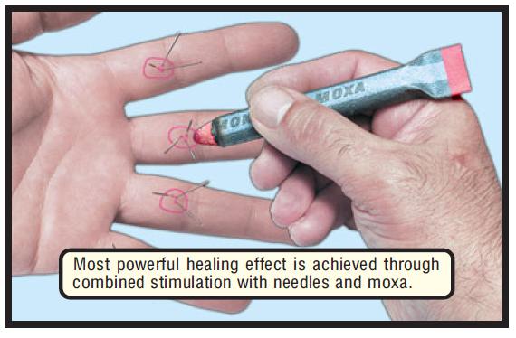 stimulation needle & moxa g 17