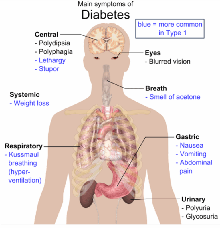 symptoms of diabetes